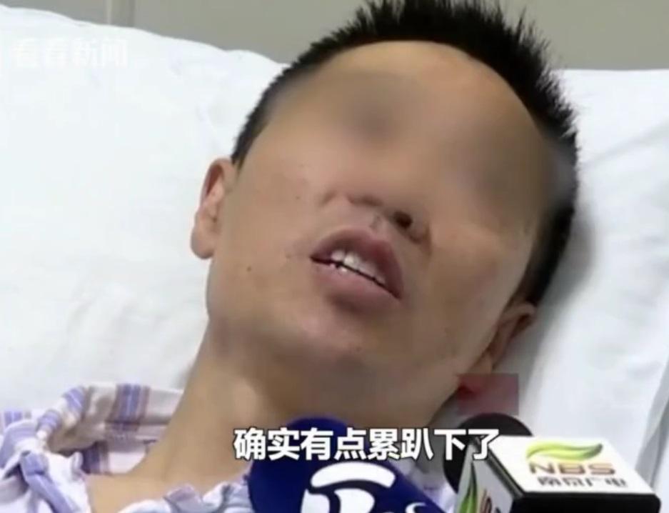 南京男子熬夜10天後出血昏迷。網上圖片
