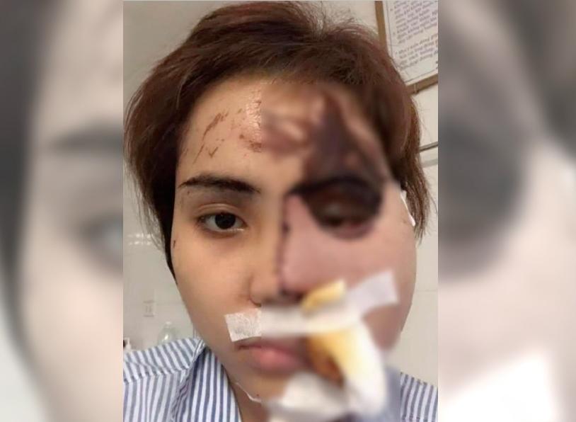 越南男警怀疑妻子出轨泼强酸毁容。网上图片