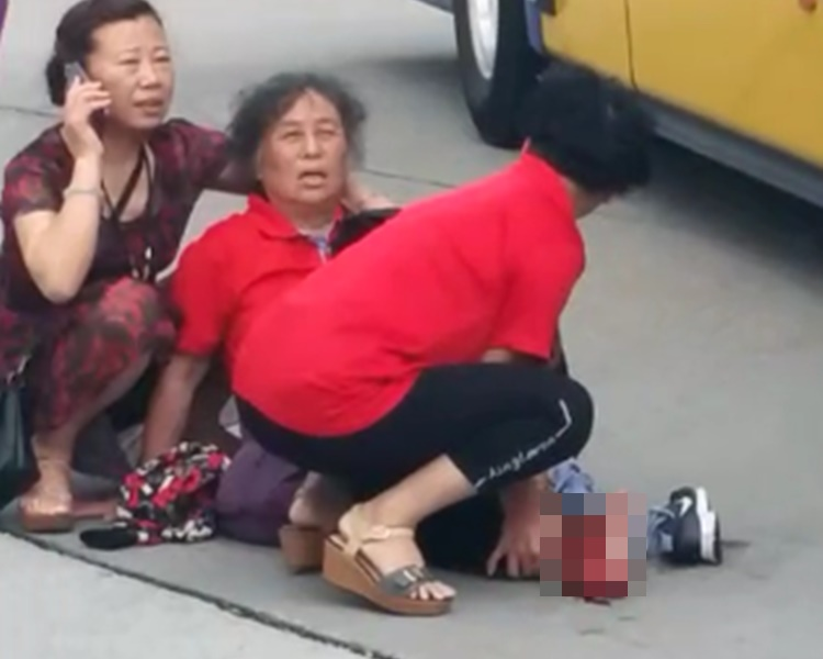 女事主(中)被旅遊巴撞倒,腳掌遭輾過,流出大量鮮血。