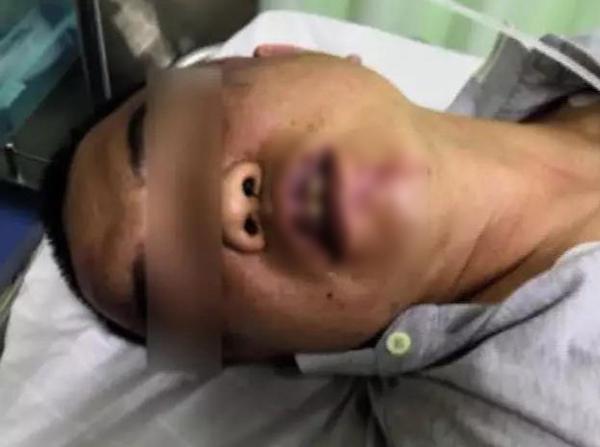 楊女一名長輩頭部受傷,正在接受治療。 網上圖片