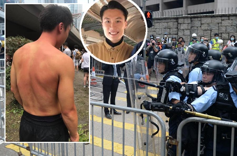 澳門記者陳嘉俊指自己毫無保護裝備下,仍遭警員「用胡椒噴霧對着本人頭部噴發」。蘇正謙攝、陳嘉俊fb圖片