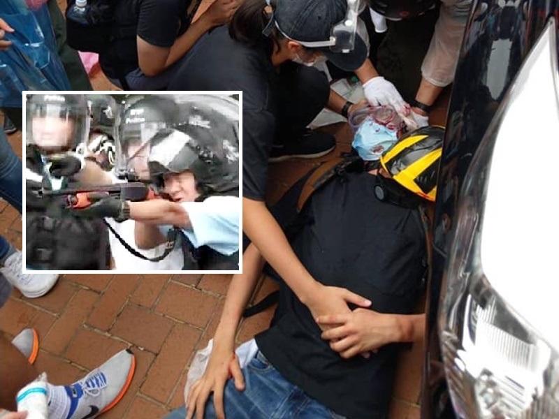 傳有示威者中槍。網圖