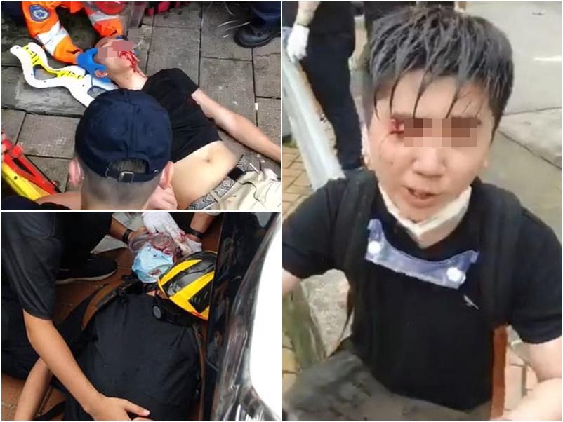 傷者增至72人。