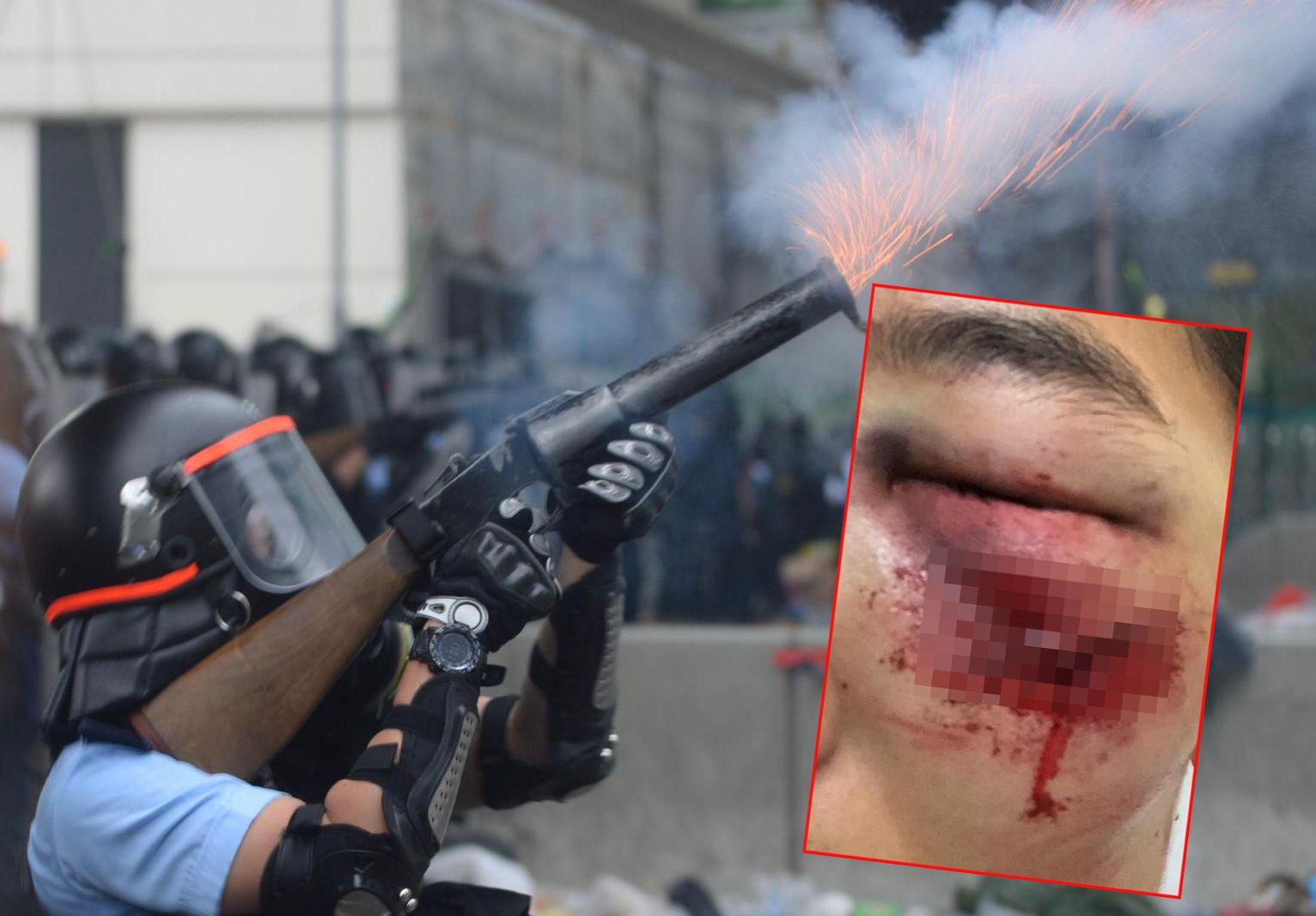 有網民事後在Facebook上傳照片,指朋友被橡膠子彈擦傷面部。