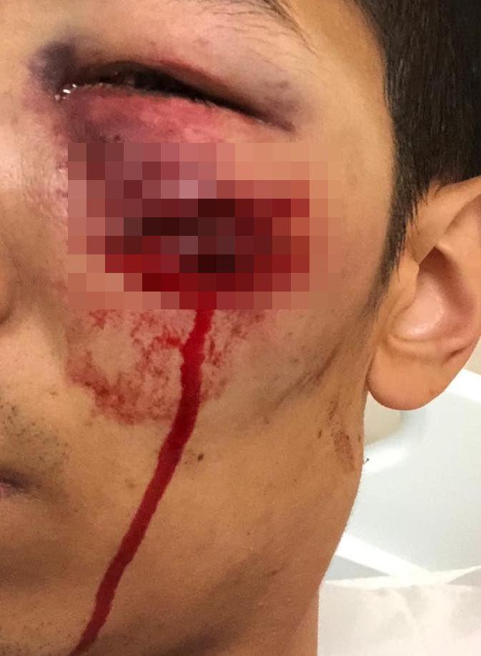 男子被橡膠彈擦面而過,血痕至少3厘米長。網圖