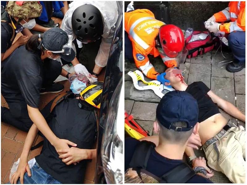傷者增至79人。