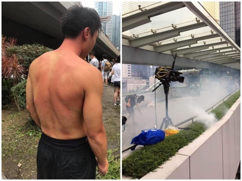 有記者指證遭警方近距離發射催淚氣體。