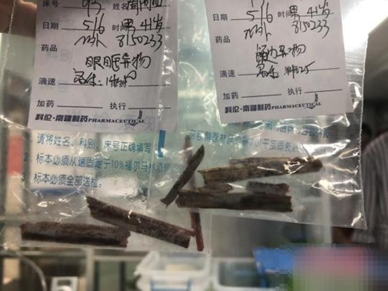 医生替男子检查发现,有长达11厘米的树枝残留在脑中。 网上图片