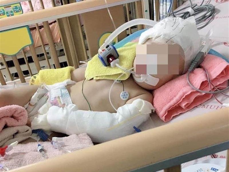 1岁陈姓女童疑遭保母虐待,脑部重伤出血送院,至今仍昏迷。