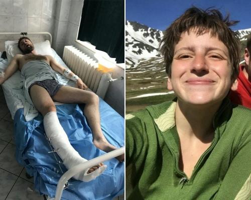 攀山漢遇棕熊襲擊被咬緊小腿不放 女友一句話救他一命