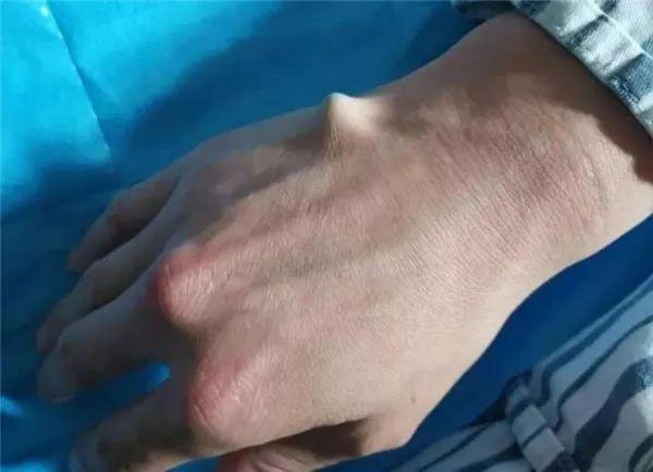 筷子插進手掌心大概兩厘米,手背都凸起來了。(網圖)