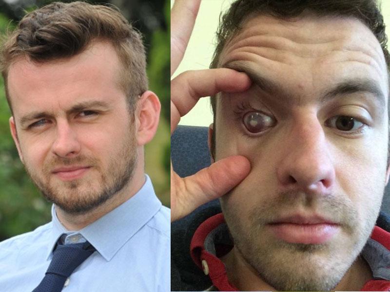 29岁英国男子戴隐形眼镜沖凉,右眼受变形虫感染失明。(网图)