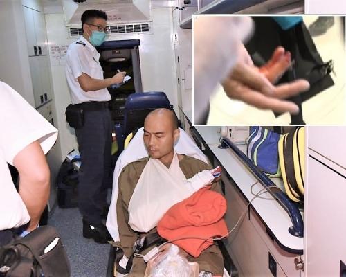 【沙田衝突】有警員遭咬斷一截手指 香港眾志指成員被180度扭傷手腕