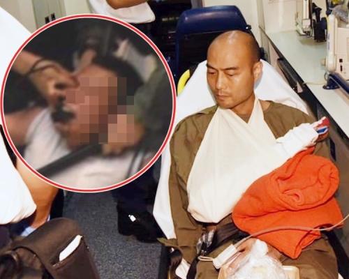 【逃犯條例】港大畢業生被捕 疑遭警按眼咬斷對方無名指