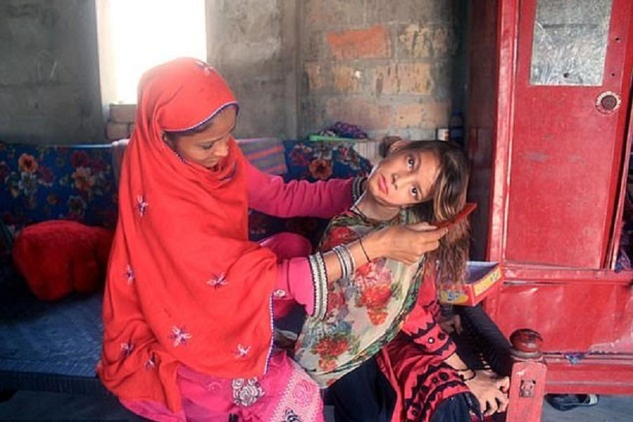 巴基斯坦女童90度扭曲 。网上图片