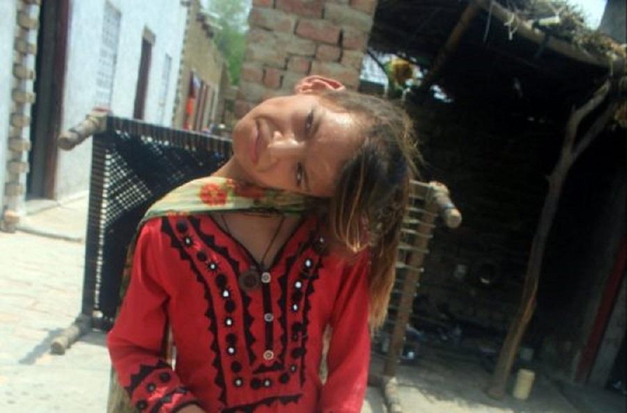 女童饱受煎熬达11年 。网上图片