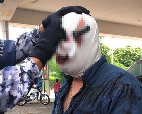 【恐怖慎入】爭車位爆發衝突墨西哥漢被利刀刺進眼窩仍繼續爭論