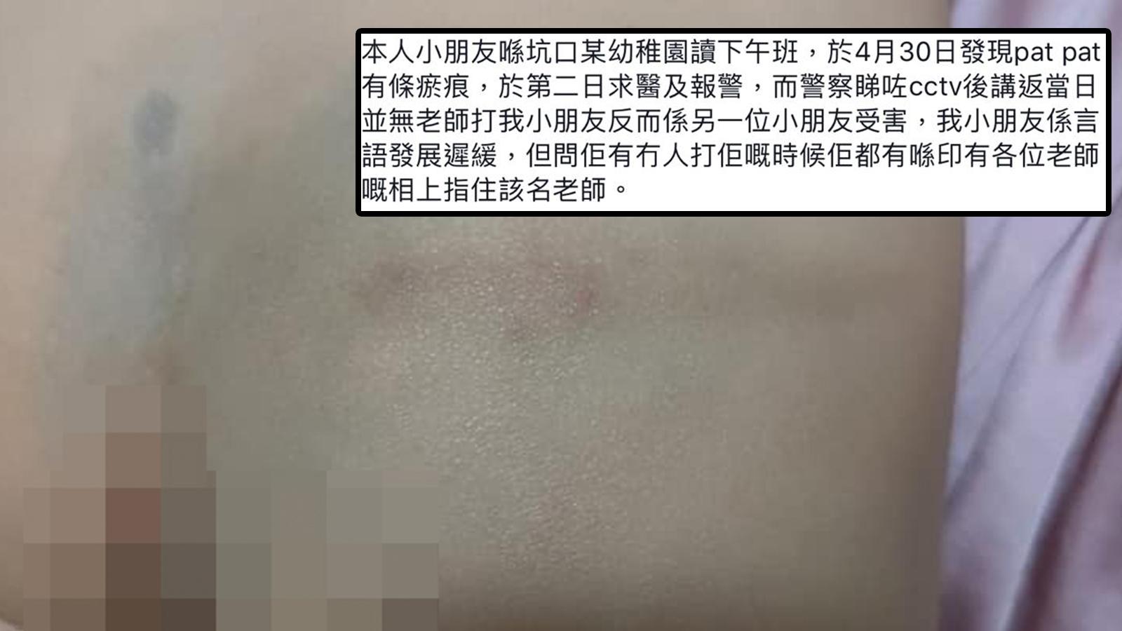 兒子屁股有瘀痕 媽媽質疑幼稚園老師所為報警處理