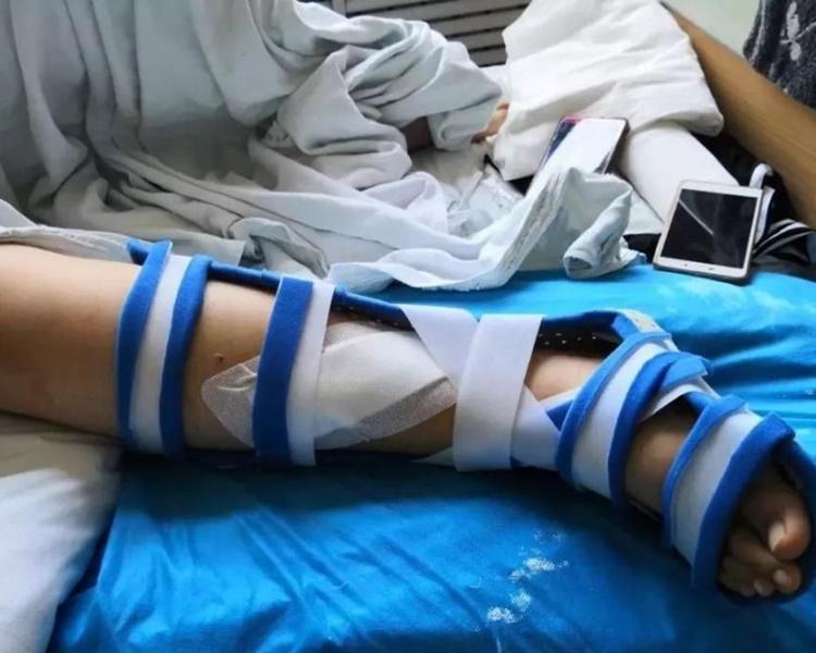 10歲女童玩跳彈床出意外斷腳。網圖