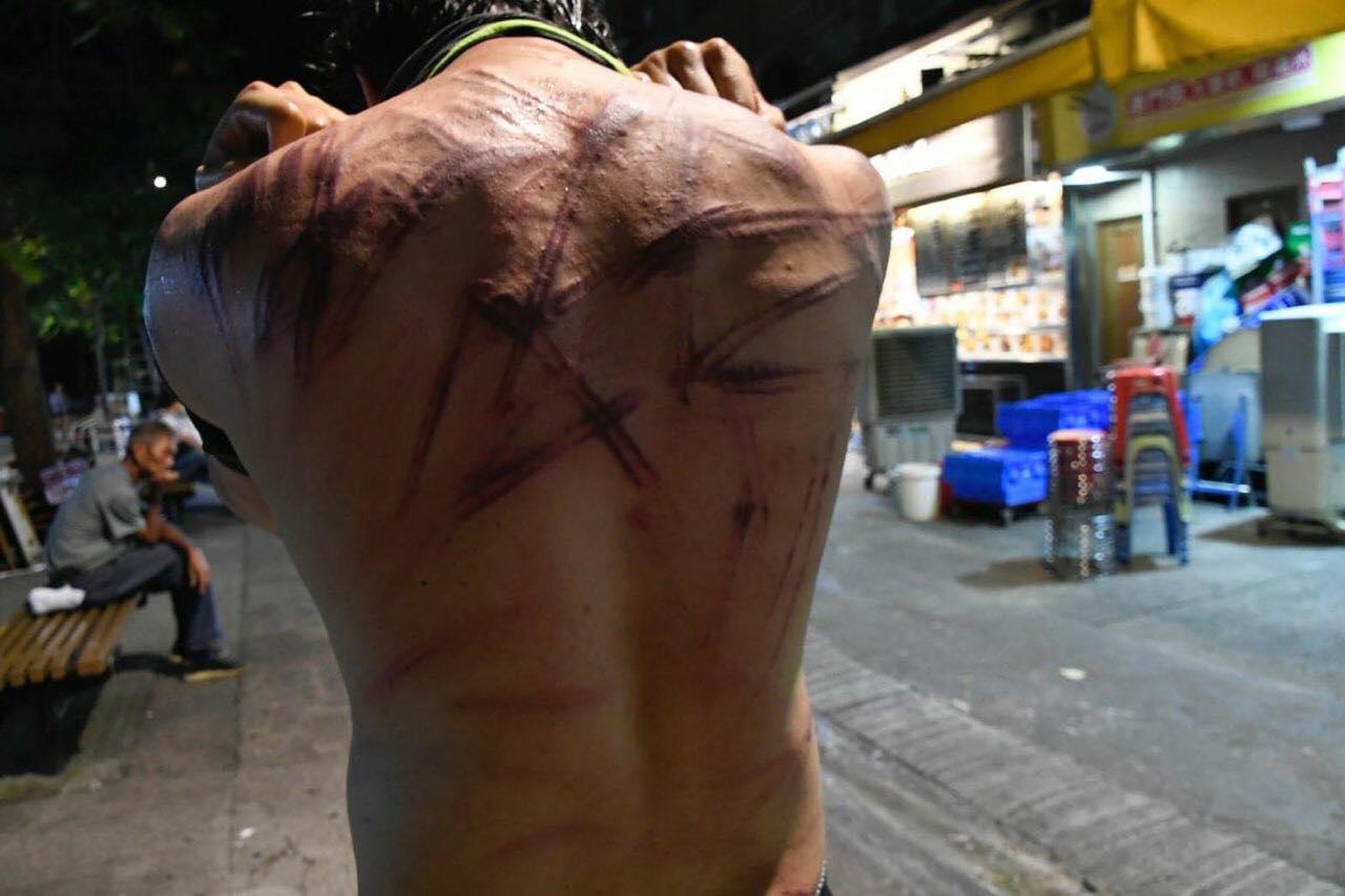 有人背部嚴重受傷。網民Elmo Lau