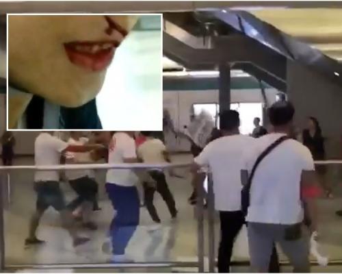 【元朗暴力】有記者被毆至大量出血 記協發聲明強烈譴責