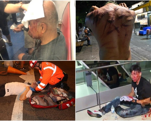 【元朗暴力】45人受傷送院 1人危殆5人嚴重