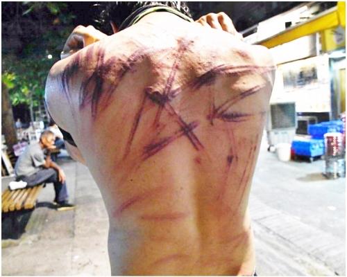 【元朗暴力】廚師下班遭20人圍毆 亂棍打至「背脊開花」