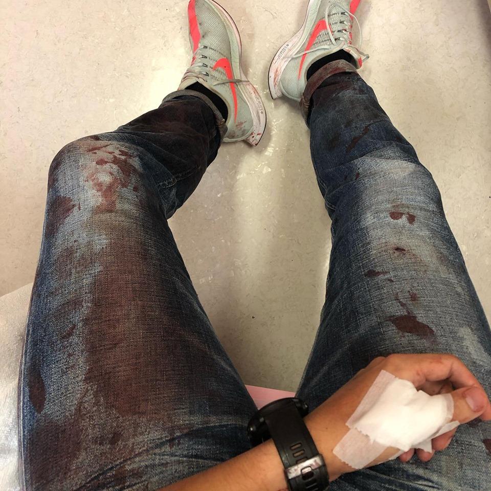 柳俊江指頭上縫8針,身體各處縫了幾針,還有很多擦傷和瘀傷。