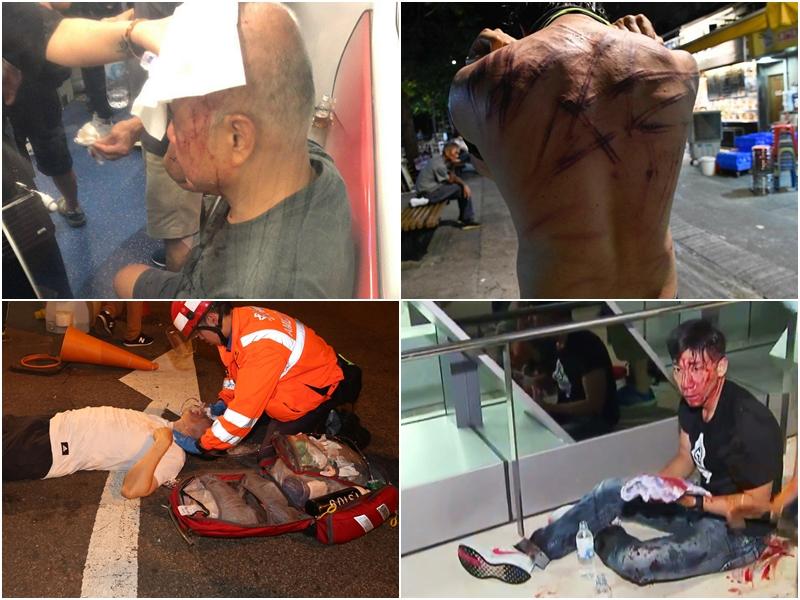 事件造成多人受傷。 資料圖片