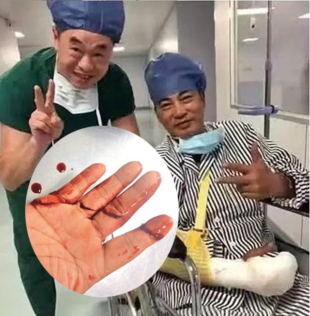 任達華右手4指受傷嚴重。(小圖為《東周刊》圖片)