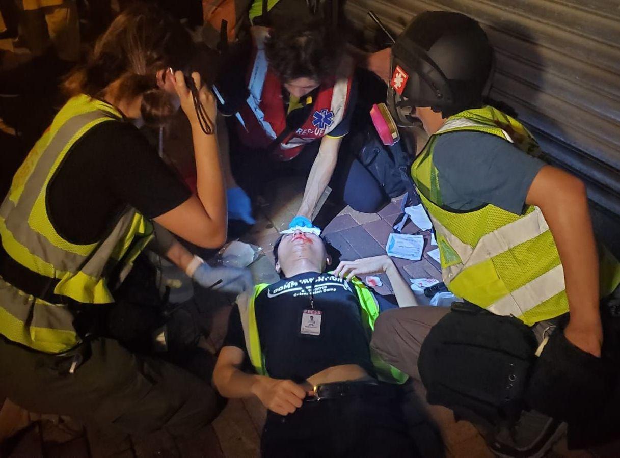 中彈受傷的攝影師。