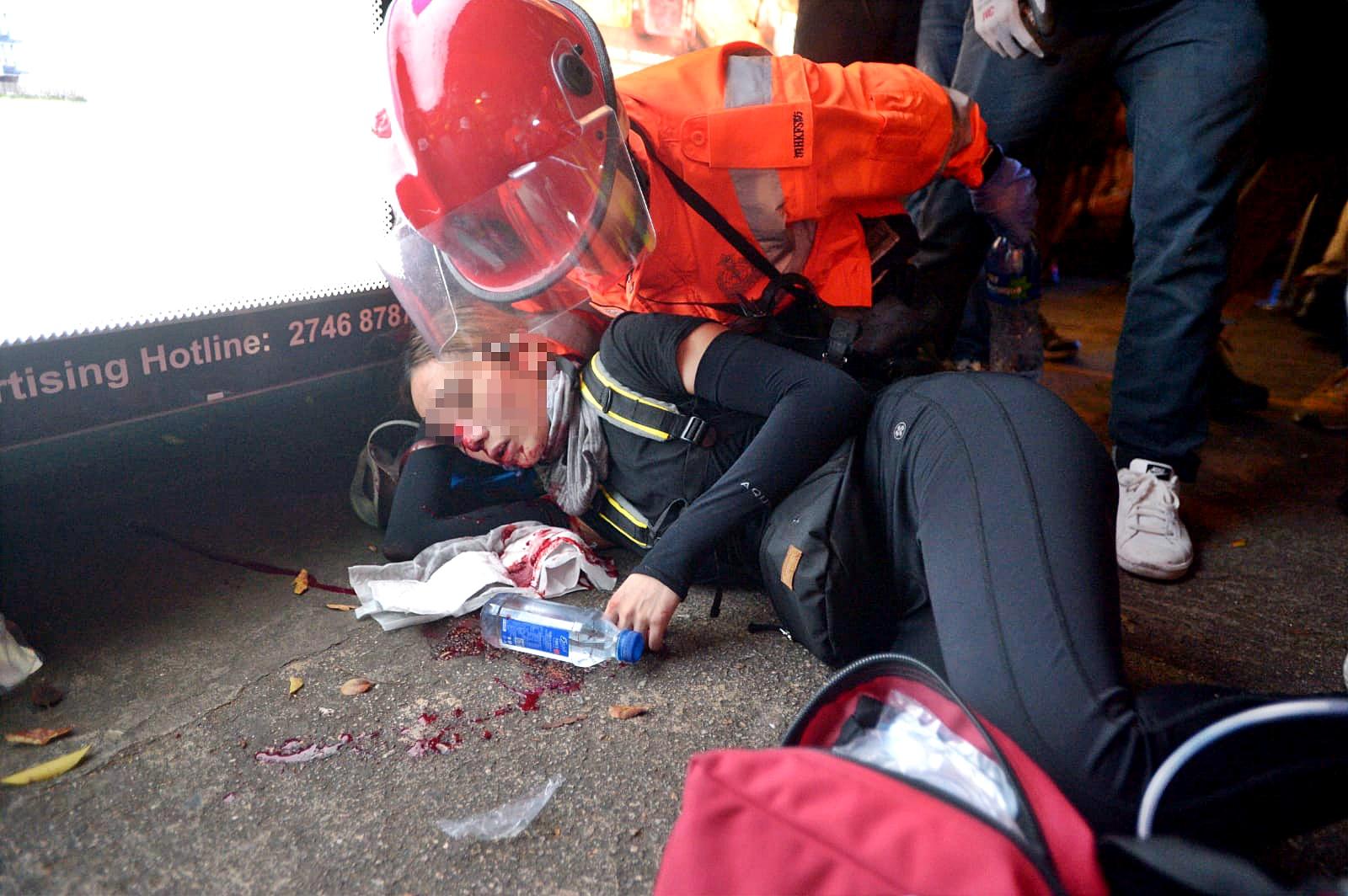 女子受傷倒地。