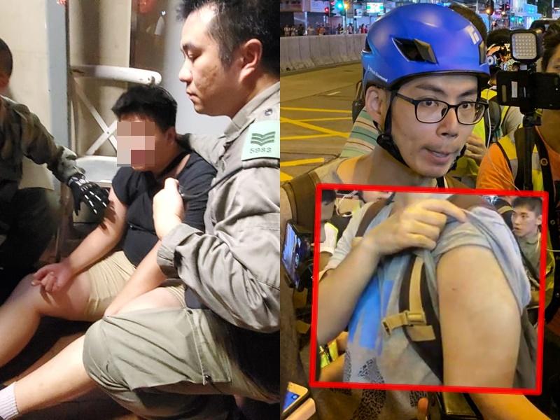 黑衫青年(左)疑遭圍毆受傷;記者遇襲受傷。