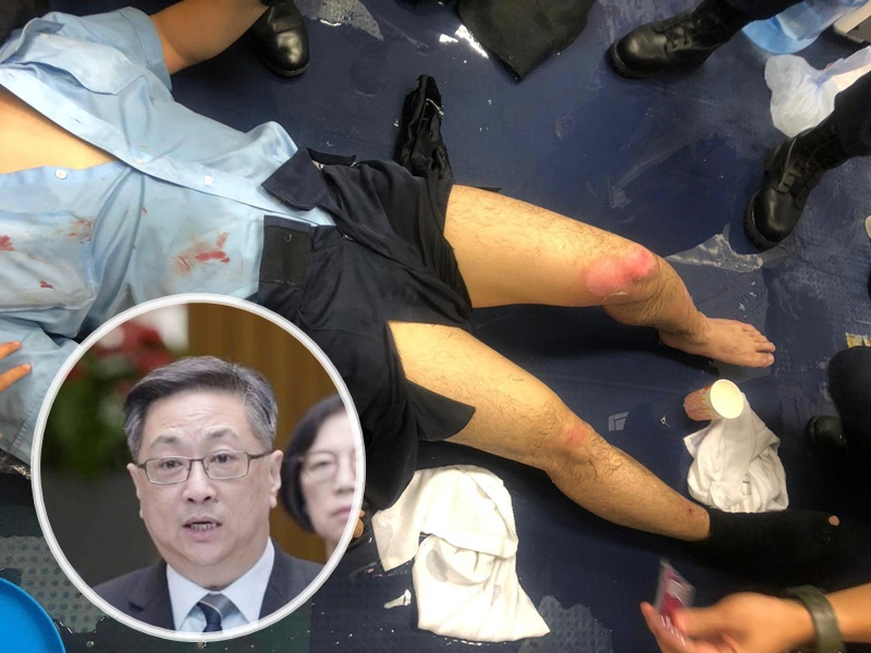 盧偉聰探望被汽油彈燒傷腳的警員。警方圖片