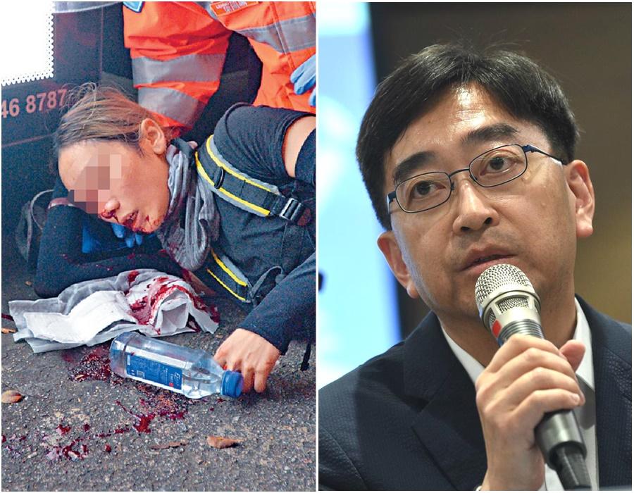 高永文一度稱女示威者遭彈珠傷眼,其後澄清不知傷勢哪方造成。