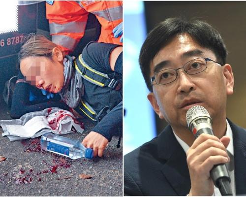 【逃犯條例】一度稱女示威者遭彈珠傷眼 高永文澄清不知哪方造成