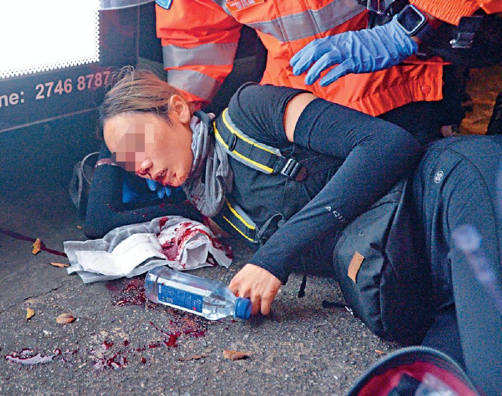 受傷女示威者至今無對外公開身份。資料圖片