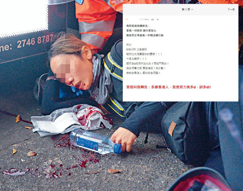 傷眼女示威者的胞妹在網上報平安。資料圖片/網上圖片