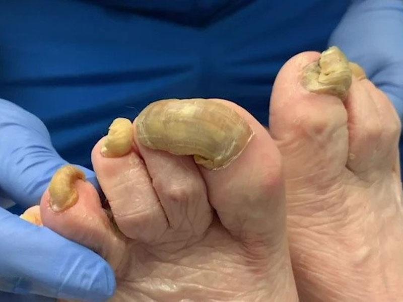 美國一名女子,長達一年都沒有修剪過自己的腳趾甲,不僅讓腳趾甲變厚變黃,甚至還遭到真菌感染。(網圖)