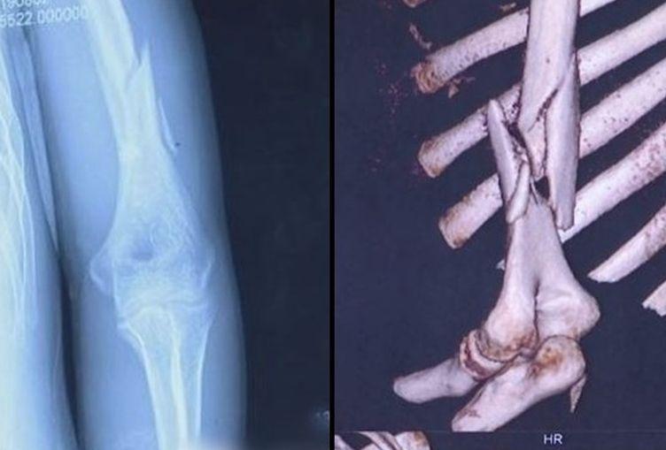 男子因施力過猛,導致左手臂當場斷裂。