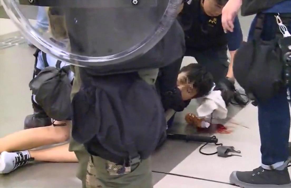 一名中六生受傷頭破血流。無綫新聞截圖