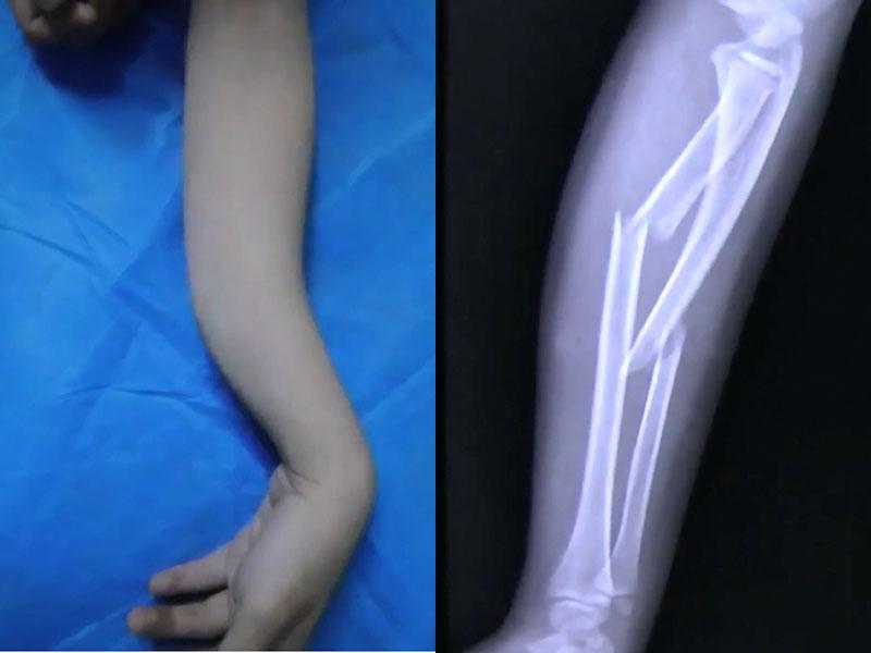 一名8歲男童跳彈床,不慎墮地,手部着地前臂彎曲骨折。(網圖)