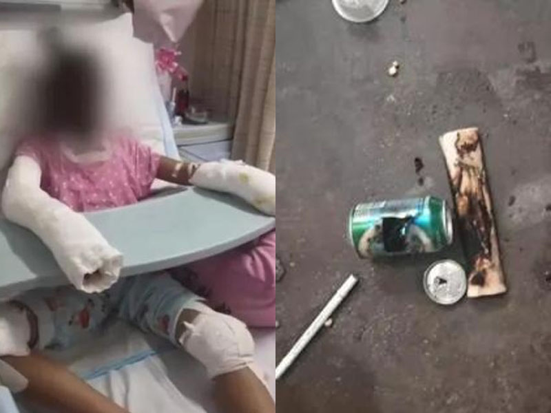 14歲女童模仿汽水罐自製爆谷,嚴重燒傷離世。(網圖)