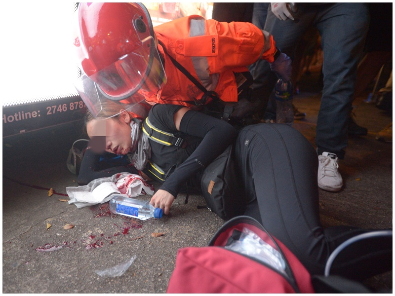 女示威者於八月十一日的示威活動中疑被警方發射的布袋陣擊中右眼。