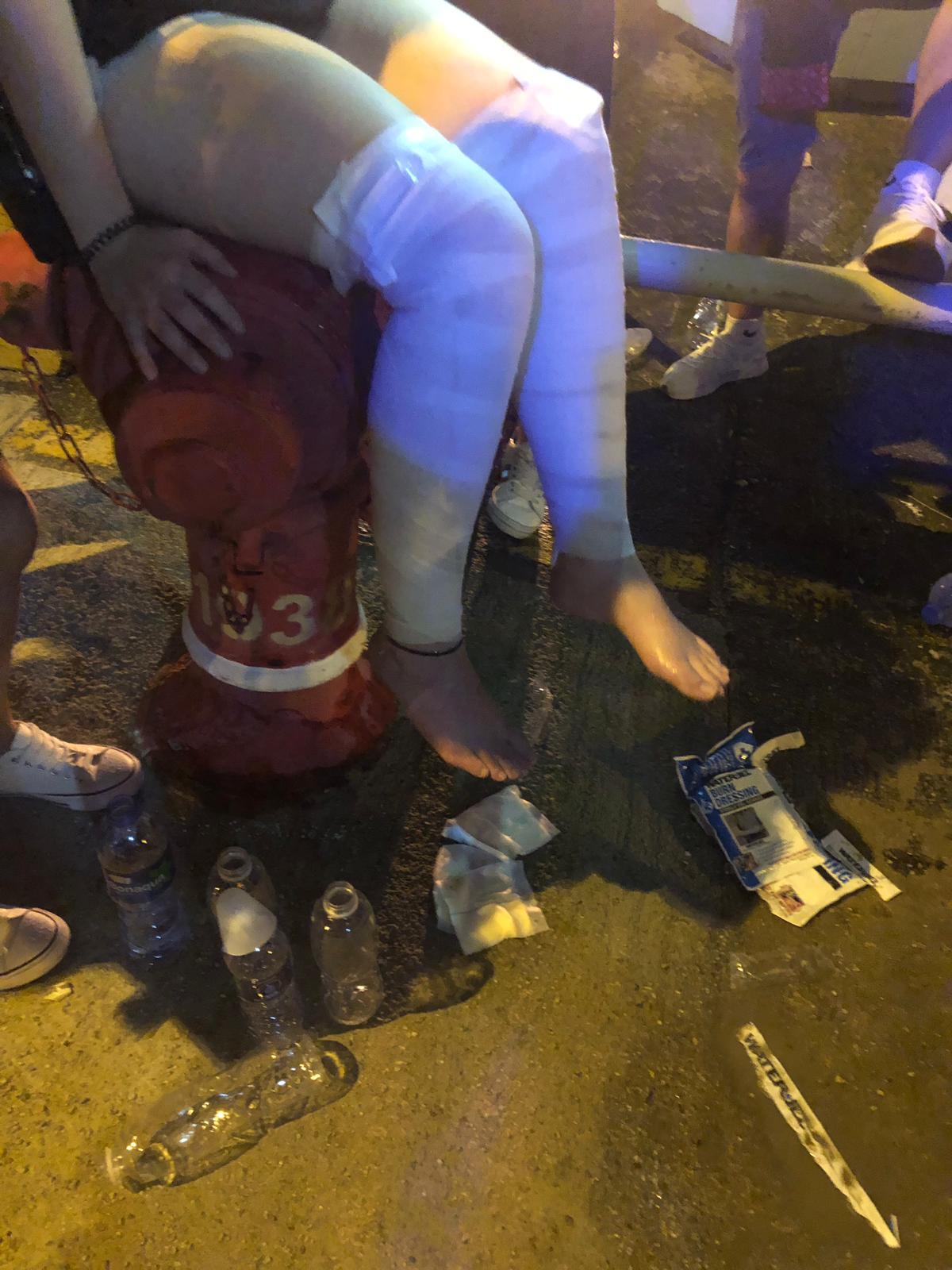 鴨脷洲合唱後 示威者被掟腐液6傷