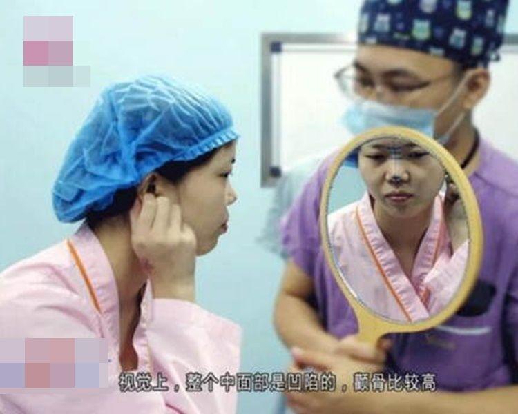 醫生說女子隆鼻前幾乎是沒有鼻樑。網圖
