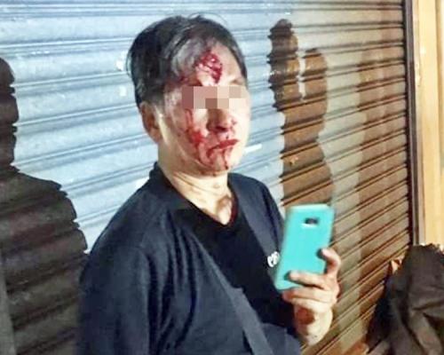 【修例風波】六旬漢太安樓撕連儂牆捱打 血流披臉