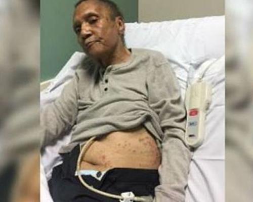 退伍老兵療養院淪「螞蟻大餐」 死後身上揭逾百螞蟻咬痕