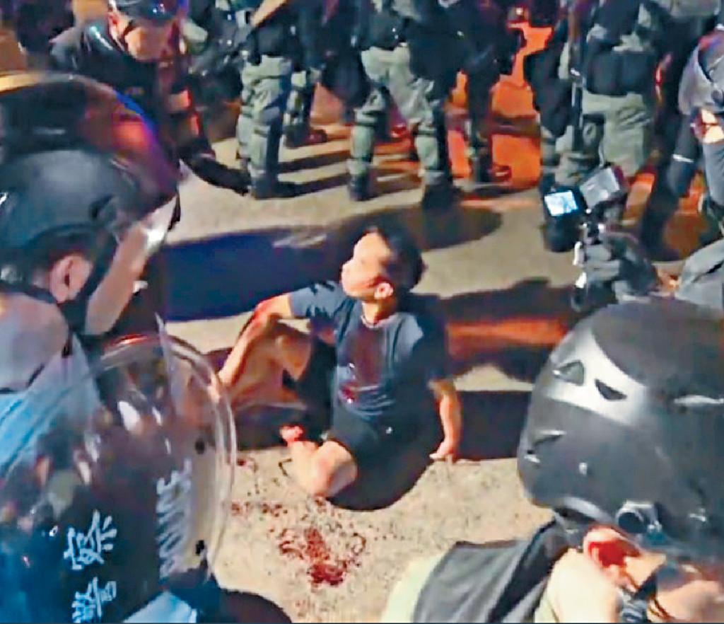 其中一名入稟高等法院司法覆核的受害人陳恭信(受傷男子)。 資料圖片