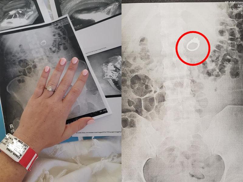 美國一名女子在睡夢中將訂婚戒指吞下肚。(網圖)